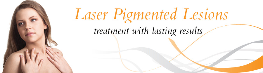 Laser Pigmented Lesions The Laser Room Coventry